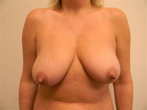 Breast massage to enlarge and lift breasts kim anami jpg 4000x3000
